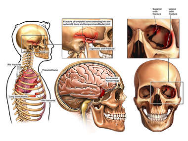 Lateral Male Torso with Brain Injury and Fractures to the Cranium, and Left Orbit