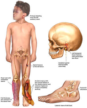 Child with Post-accident Injuries to the Skull, Ankle and Legs Bilaterally