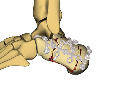 Internal Calcaneus Fixation