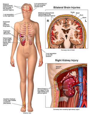 Female Figure with Brain Injury, and Right Kidney Rupture and Hemorrhage