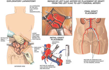 Exploratory Laparotomy with Left Iliac Artery Repair