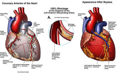 Coronary Artery Blockage with Initial Bypass Surgery