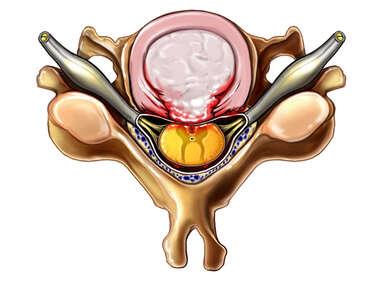 Herniated Disc: Superior view