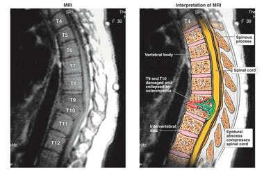 Spinal Cord Compression - T9-10 Epidural Abscess.