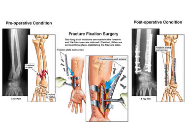 Progression of Left Forearm Fracture