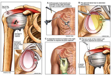 Right Shoulder Injuries with Arthroscopic Surgical Repair