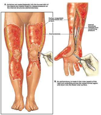 Escharotomics to the Upper and Lower Extremities