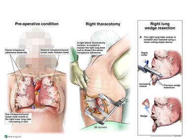 Recurrent Lung Metastasis with Right Thoracotomy and Wedge Resection