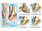 Left Ankle and Achilles Tendon Injuries with Surgery