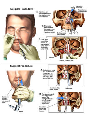 Secondary Facial Surgical Repair