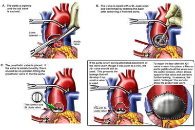 Correct Aortic Valve Replacement