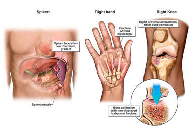 Post-accident Injuries to the Spleen, Hand and Knee