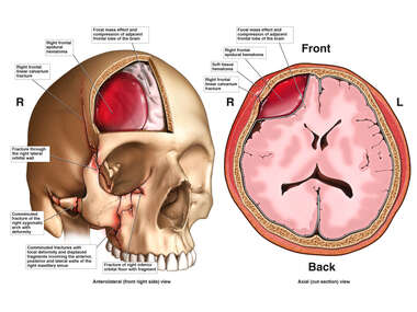 Skull Fractures with Underlying Brain Injury