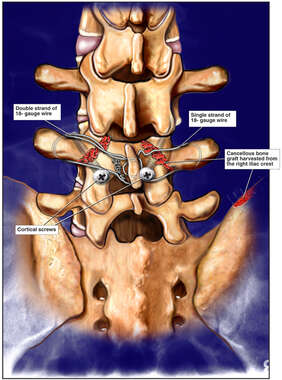 L4 Injury with Initial Surgical Repairs Using Bone Grafts and Hardware