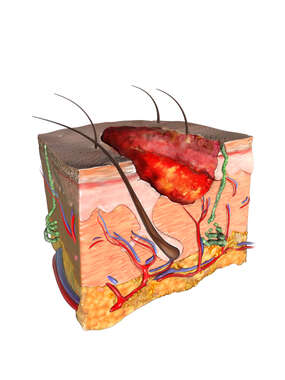 Skin Cube with Ulcer