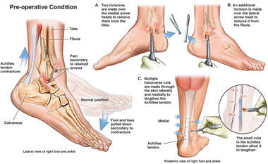 Achilles Tendon Contracture and Painful Hardware