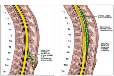Progression of Spinal Abscess