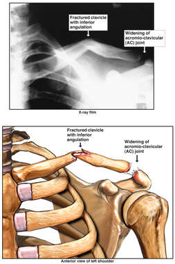 Left Clavicular Fracture