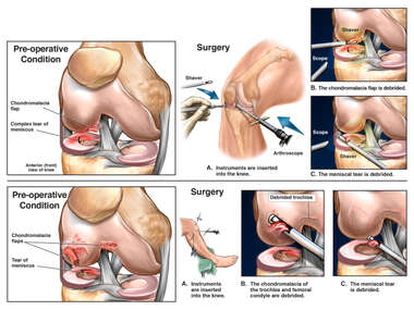 Right Knee Injuries with Surgical Procedures