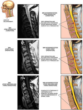 Cervical Disc Herniations with Impingement of the Spinal Canal