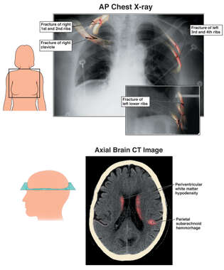 Female with Colorized Post-Accident X-Rays of Injuries to the Thorax and Brain