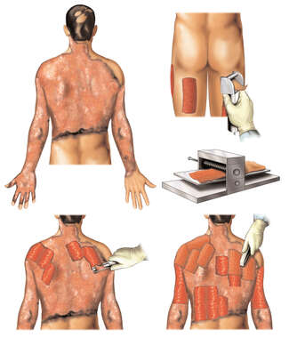 Debridement and Skin Grafting of Torso and Upper Extremities