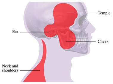 TMJ: Areas of Pain